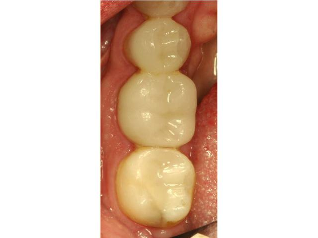 CEREC After